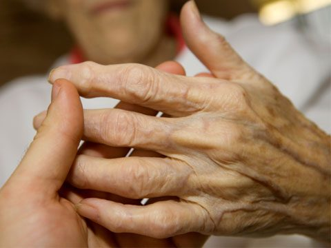Your Fingers and Nodal Osteoarthritis