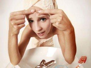 Garlic clears acne.