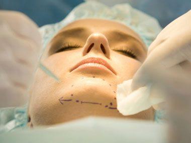 surgeon secrets, cosmetic surgery