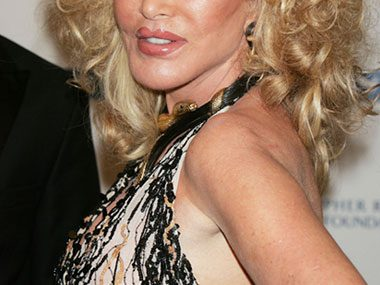 7. We think the celebrities with the frozen faces, puffed-up lips, and gargantuan breast implants look ridiculous too.