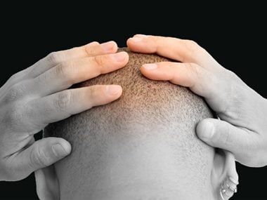 Baldness could indicate clogged arteries.