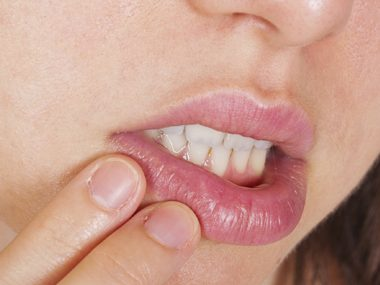 Use coconut oil to treat cold sores