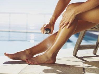 sunburn feet