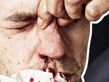 first aid mistakes nose bleed