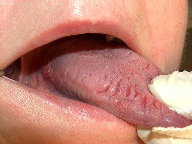 Secrets Your Tongue Reveals About Your Health Reader S Digest