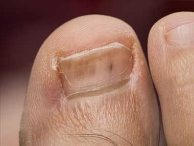 You notice: Tiny, red lines under the toenail