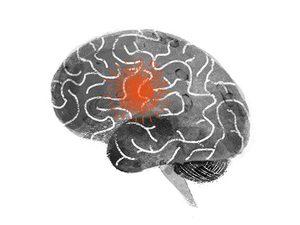 signs of a stroke brain