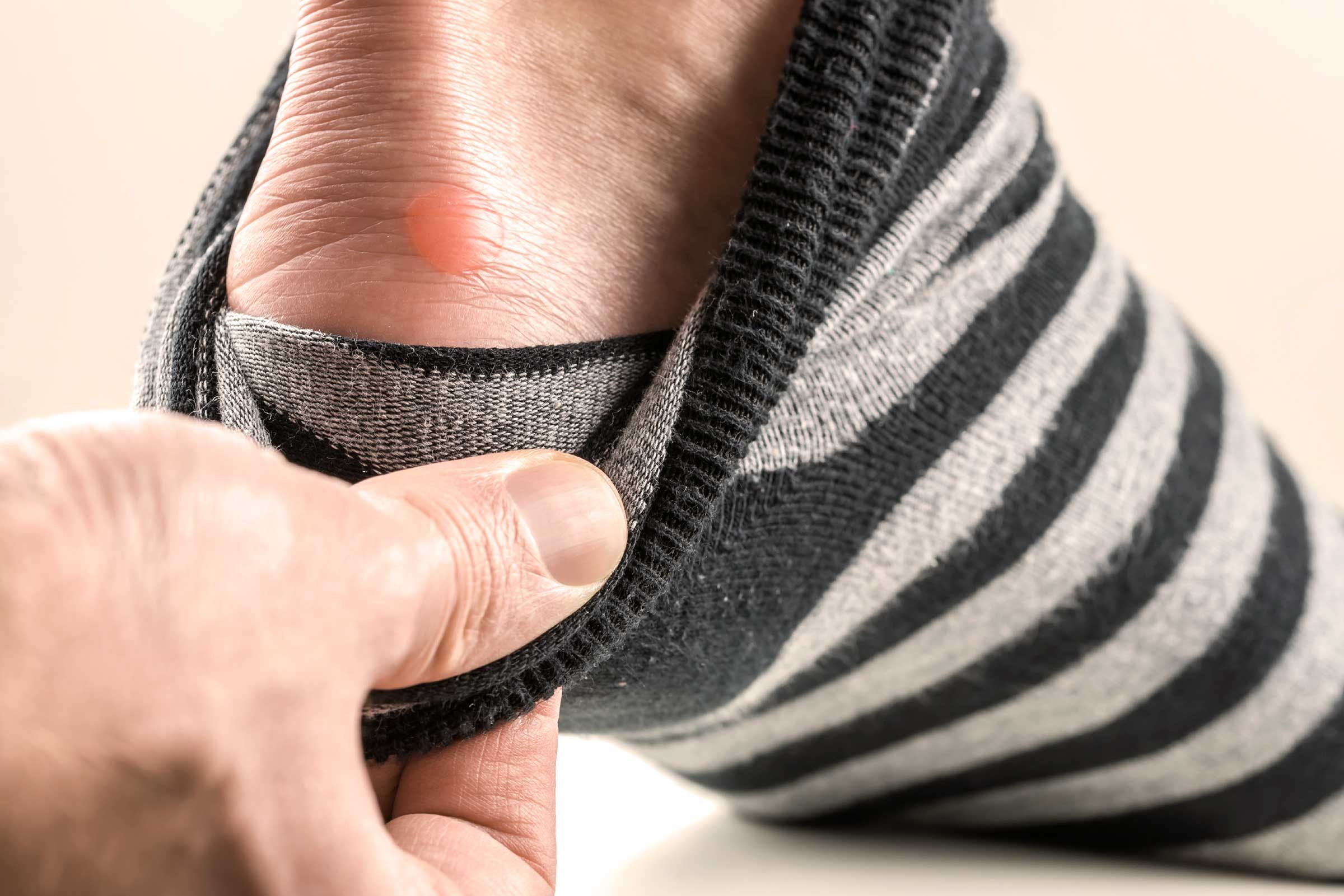 How To Prevent Blisters When Wearing Shoes Without Socks