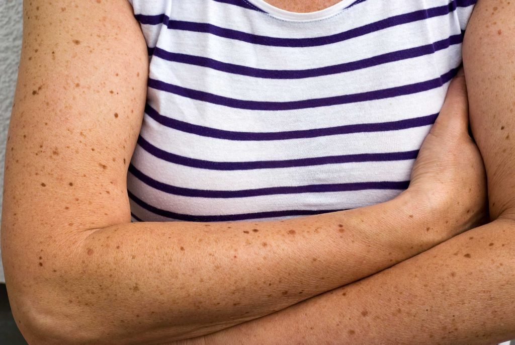 health tips moles on arm