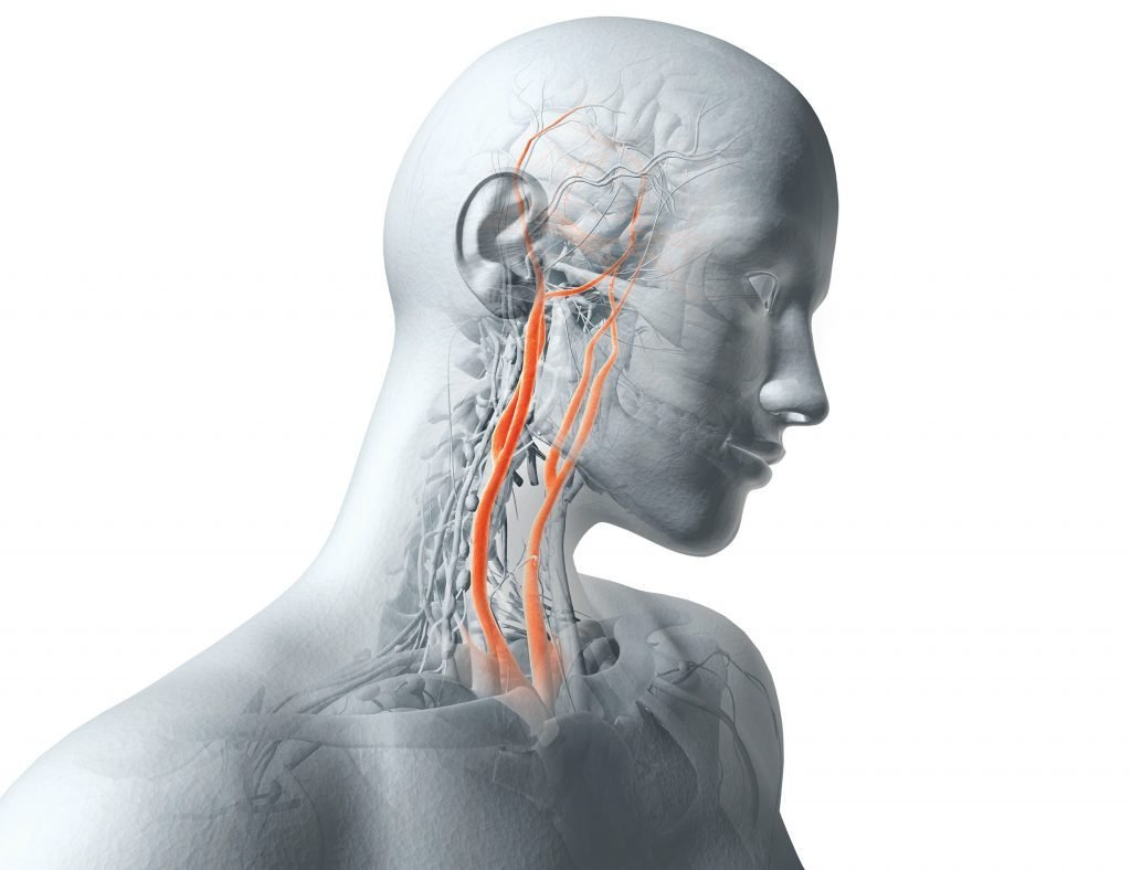 Carotid Artery Surgery: Could It Give You a Stroke? | Reader\'s Digest