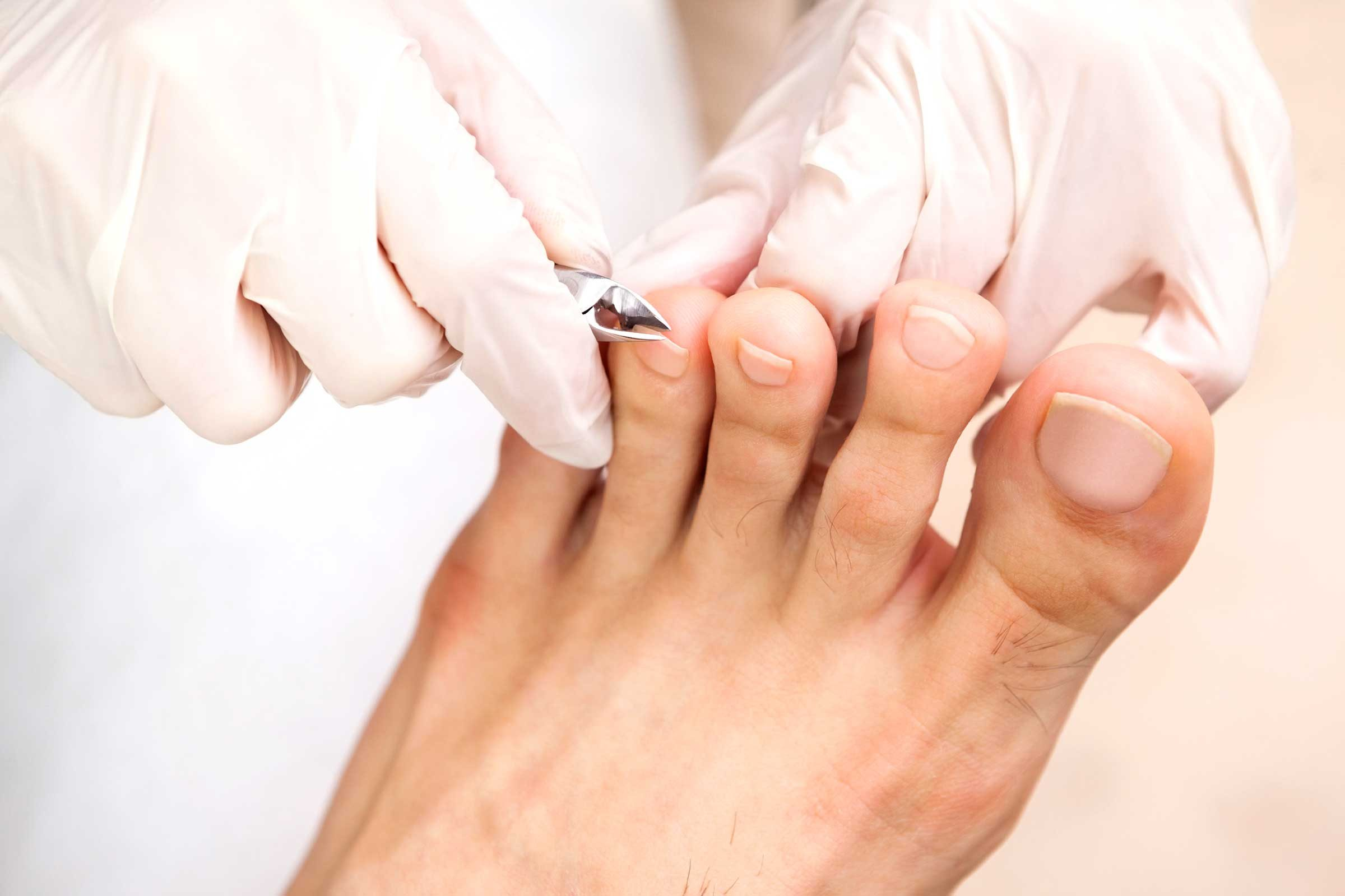 Ask Your Podiatrist To Trim Toenails At Next Visit