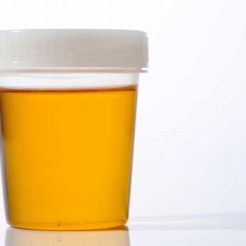 10 Things Your Pee Reveals About Your Health (Besides Dehydration)