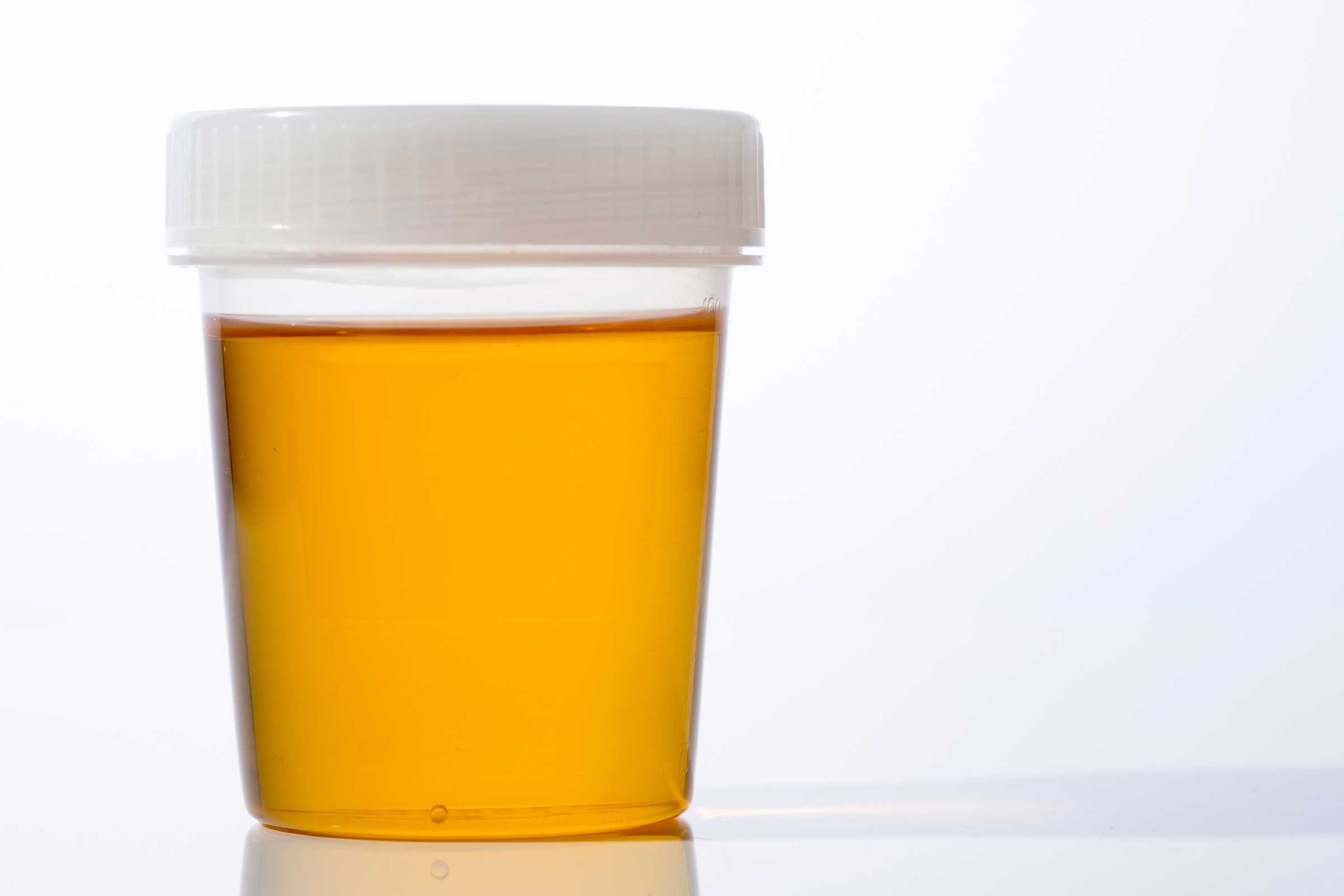 Urine Infections, Urine Color: What Urine Says About ...  Brown