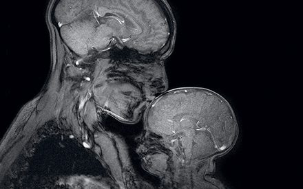 A Mother Took Her Child Into an MRI Scanner For the First Time In History. What She Saw Is Incredible.