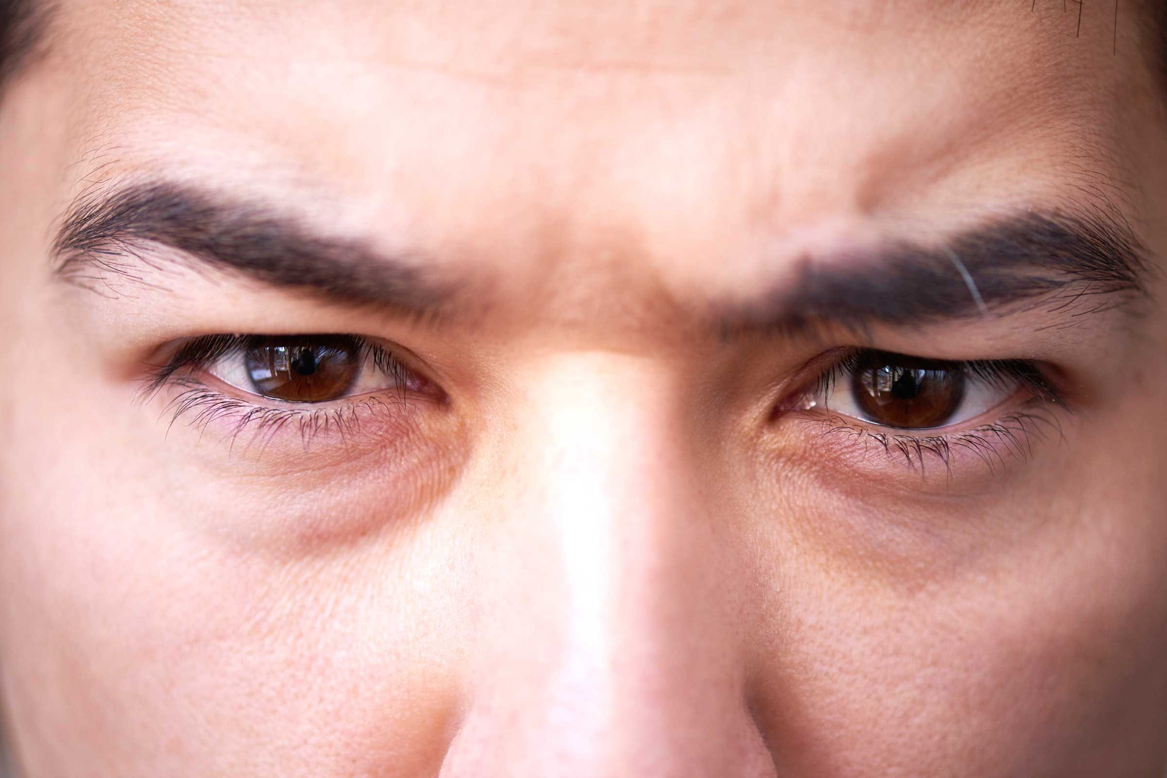 First Aid Tips for Four Common Eye Injuries pictures