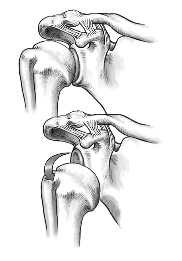 Treat A Dislocated Shoulder Without A Doctor Readers Digest