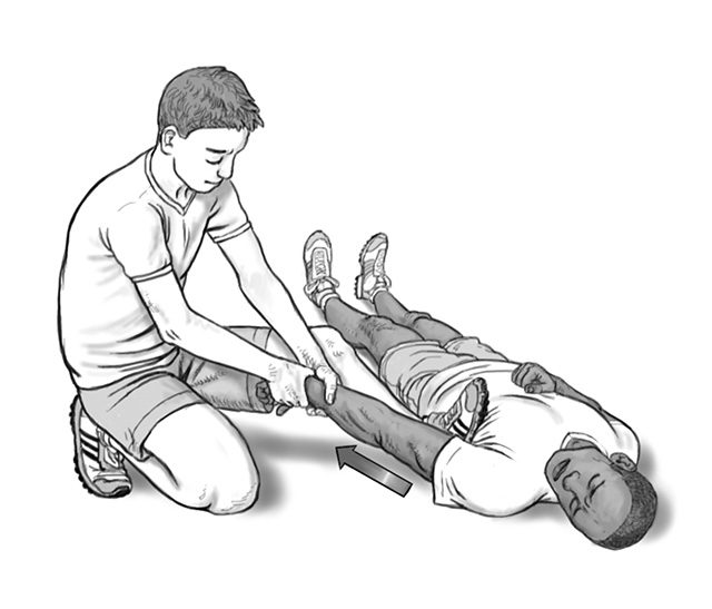 dislocated shoulder arm pull