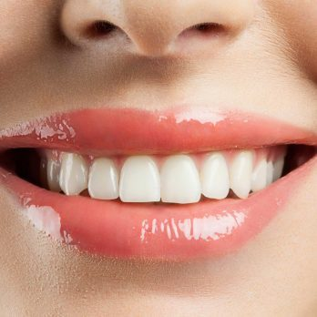 7 Ways You Didn't Realize You Were Staining Your Teeth