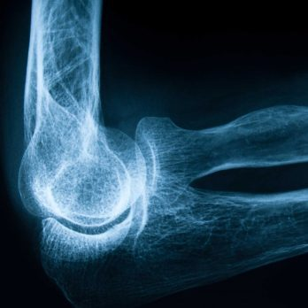 6 Silent Signs You Might Have Osteoporosis
