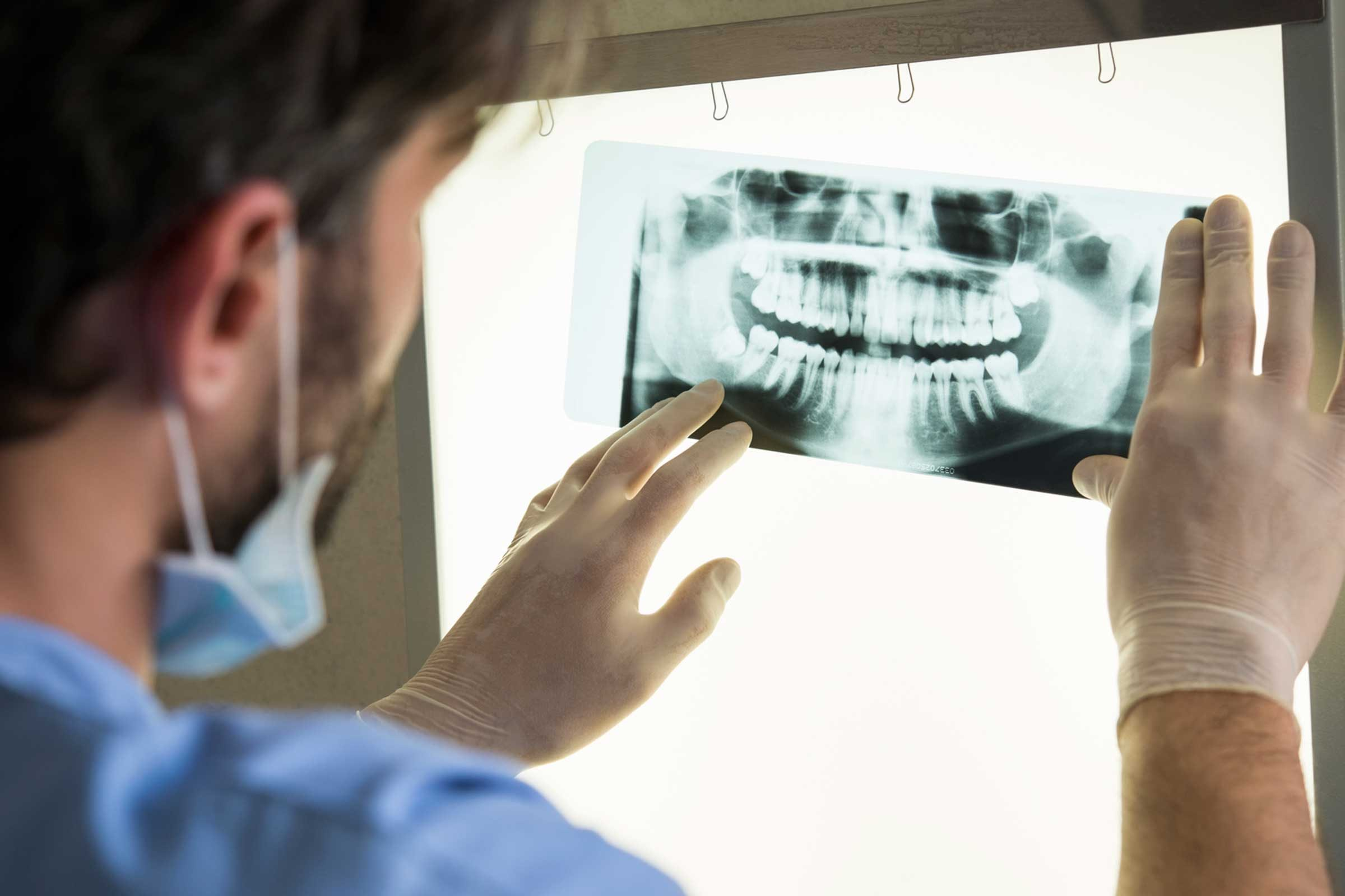 Cavity Symptoms You Shouldn't Ignore | Reader's Digest