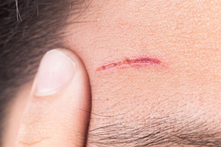 ilustrasi pendarahan