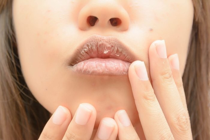 dry Mouth women