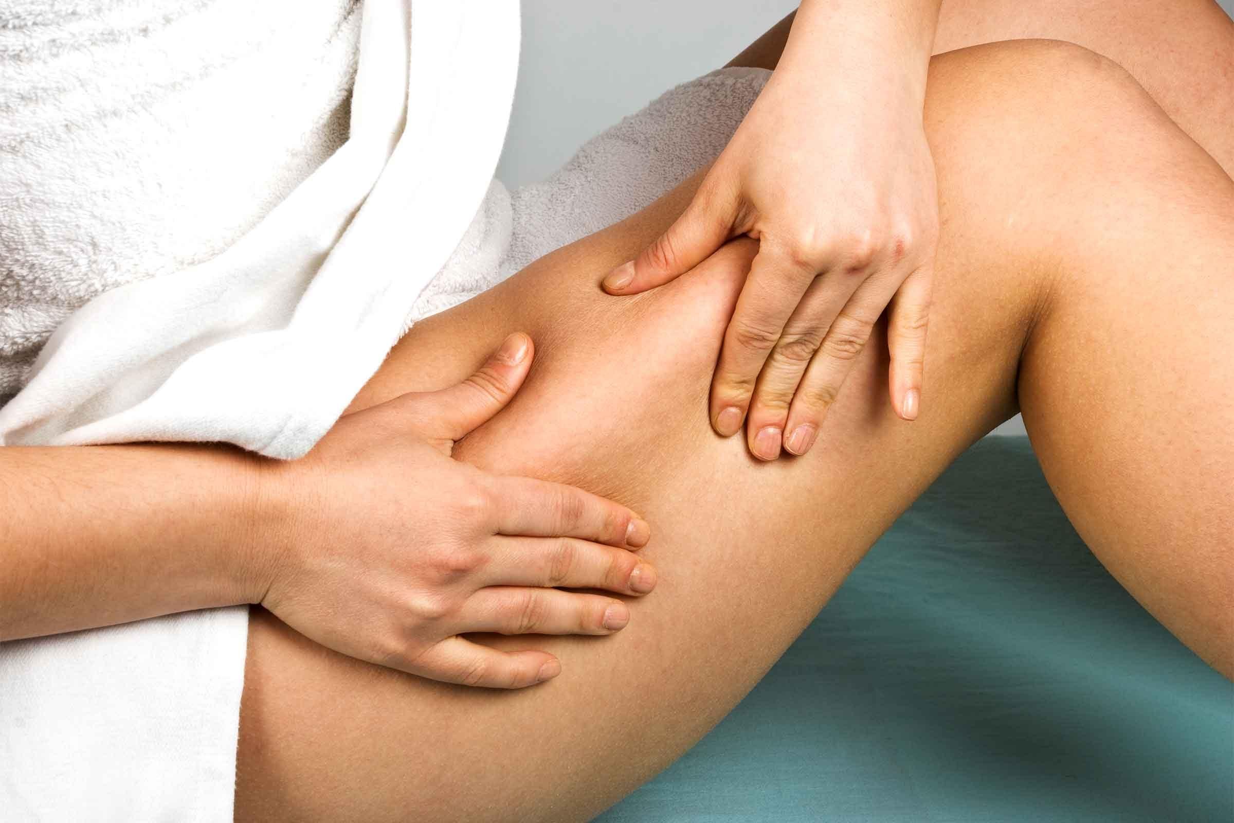 01-dermatologists-cellulite
