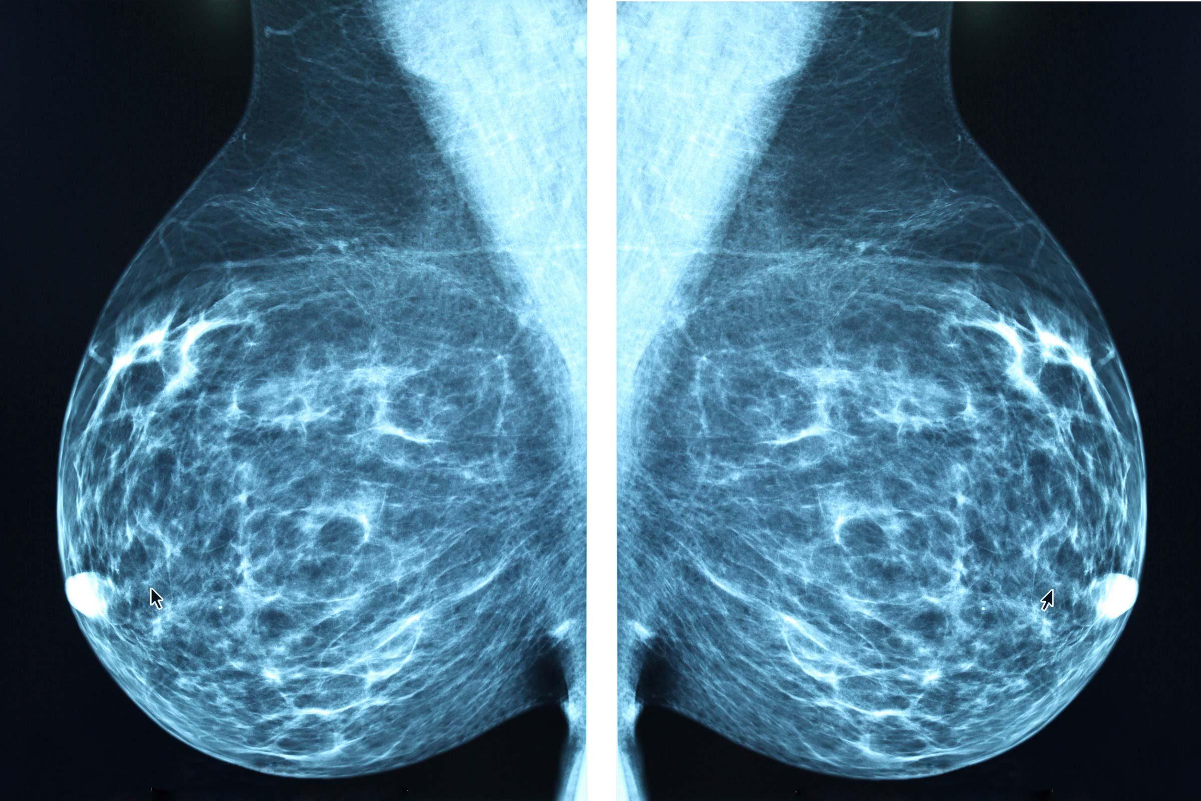 Watch Mammograms: WhoNeedsThem video