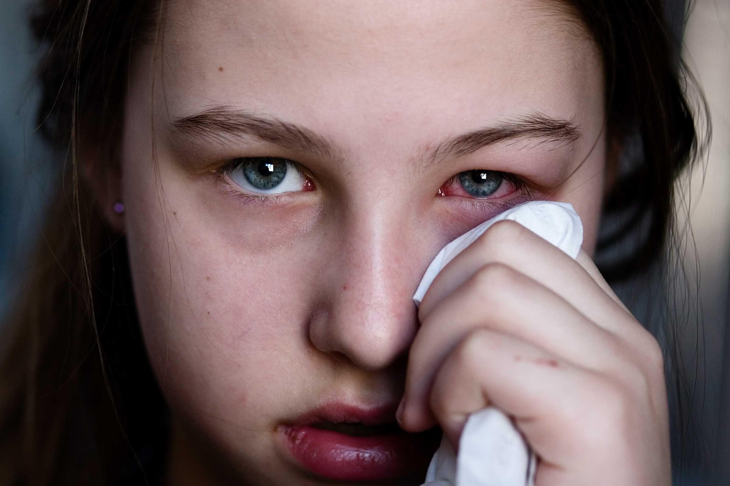 Pink Eye Symptoms You Shouldn't Ignore | Reader's Digest