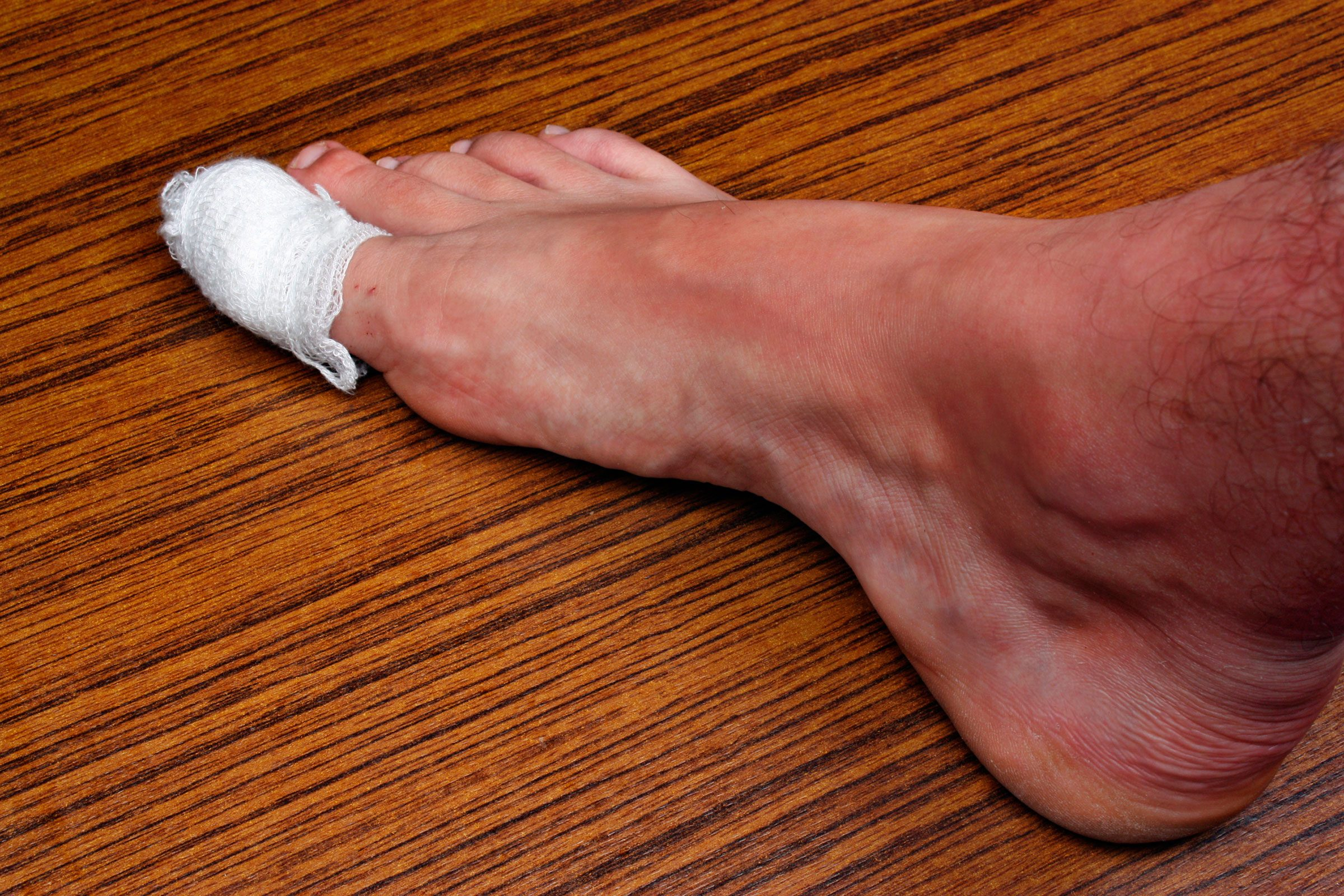 10 Signs of Disease Your Feet Can Reveal | Reader\'s Digest