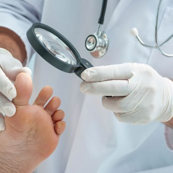 10 Subtle Signs of Disease Your Feet Can Reveal