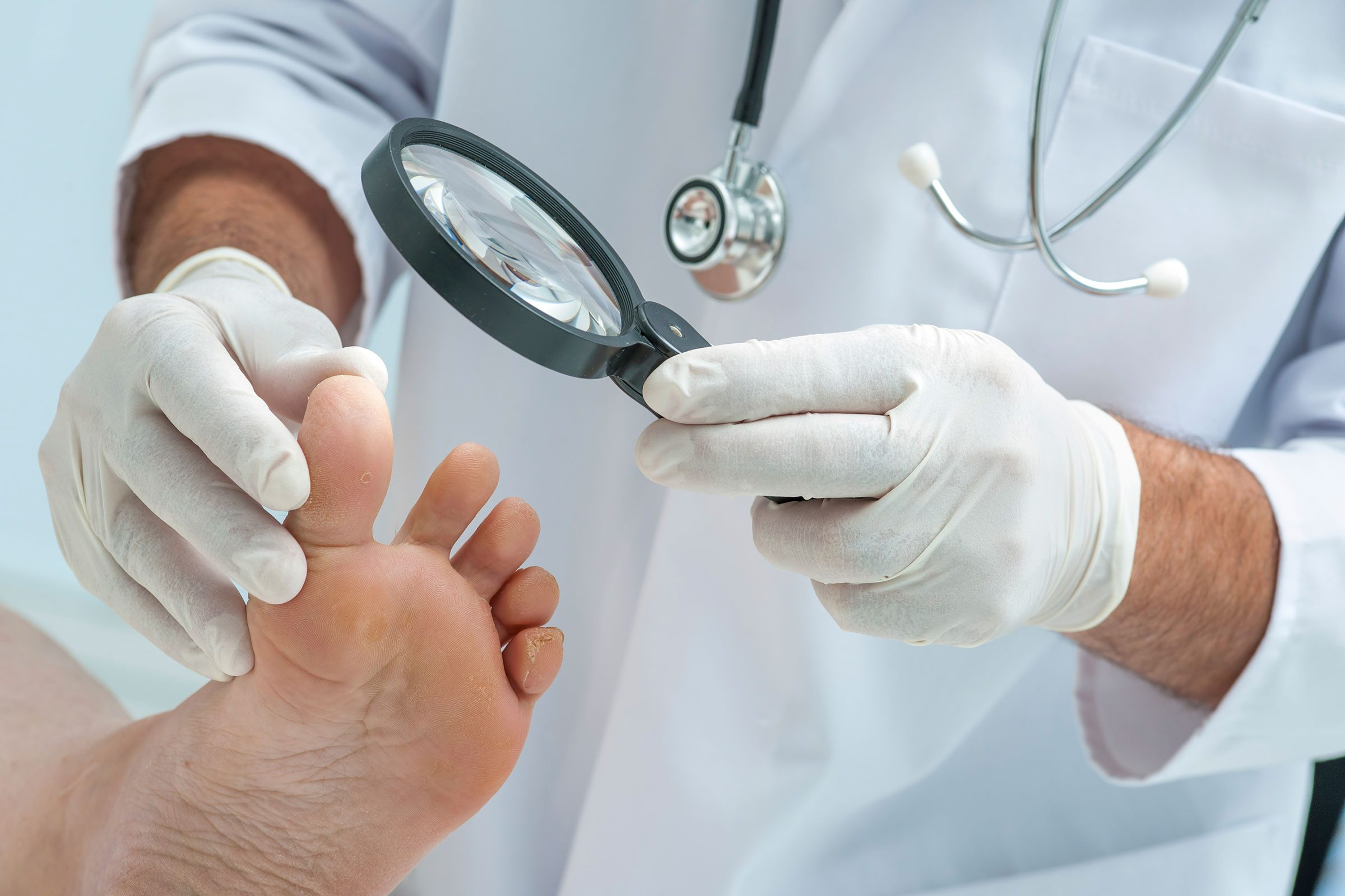 10 Signs Of Disease Your Feet Can Reveal Readers Digest