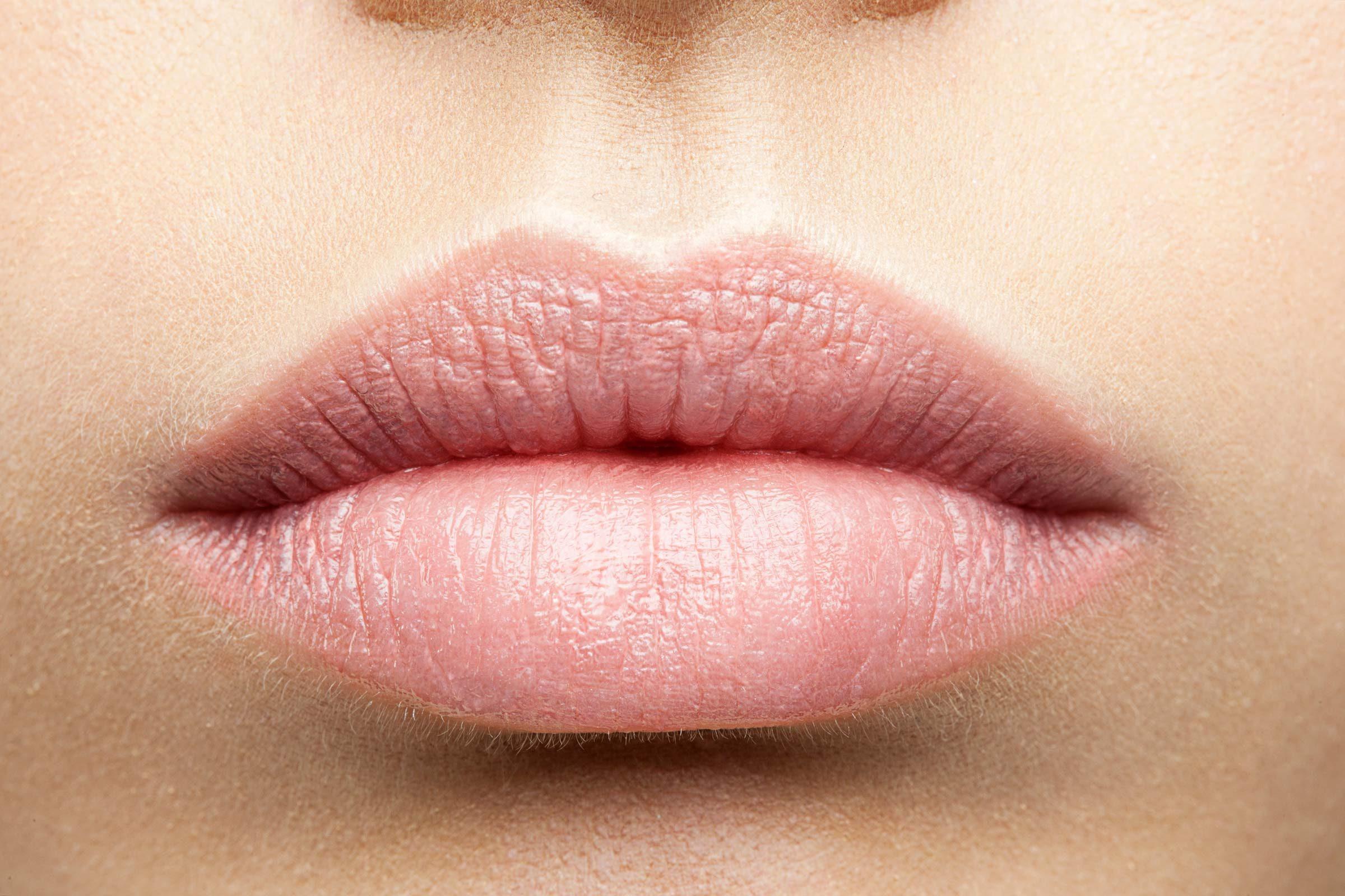 Canker Sore On Lower Lip