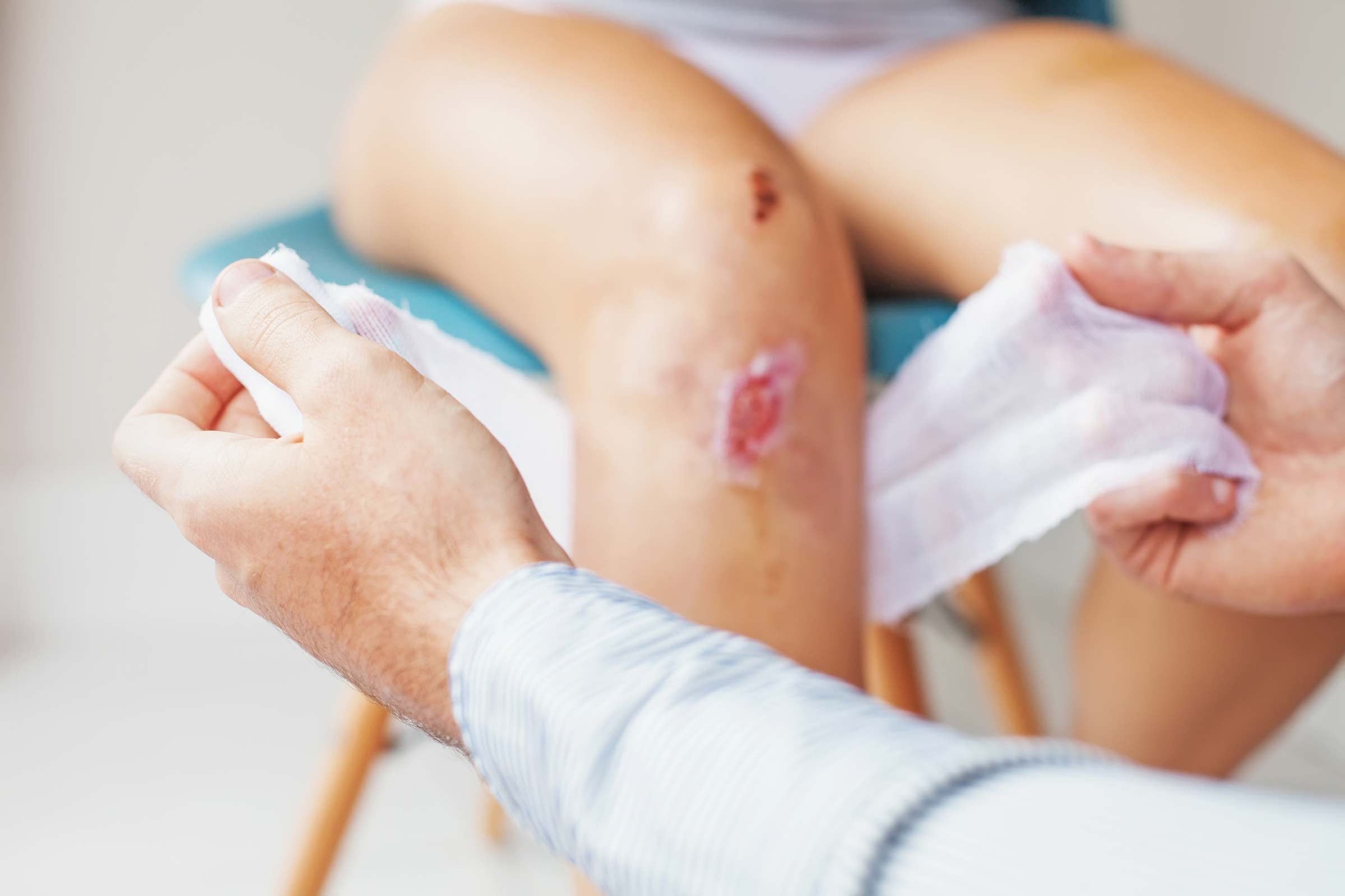 Is That Cut or Scrape Infected? Signs You Shouldn't Ignore