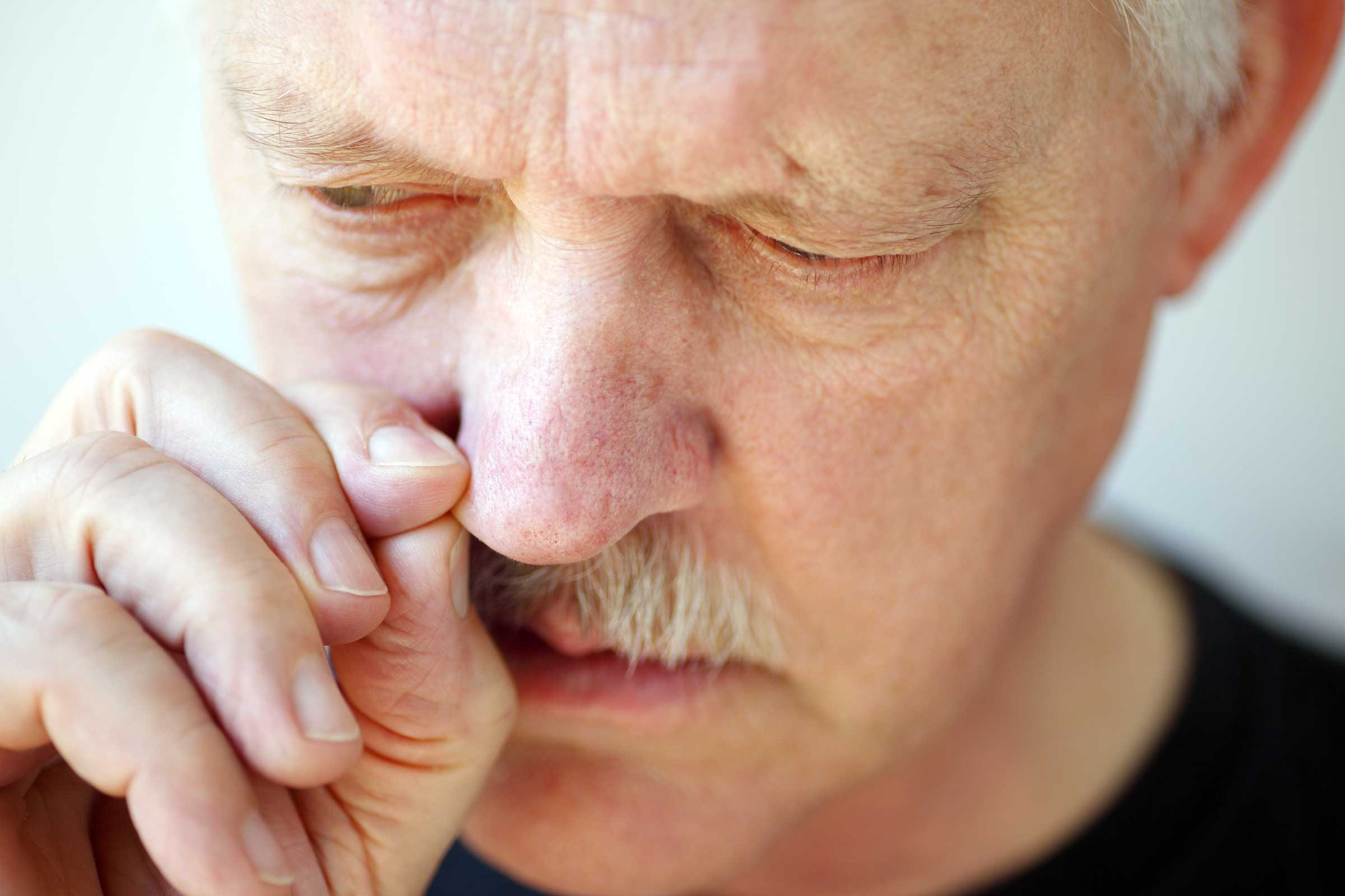 Facial swelling with copd