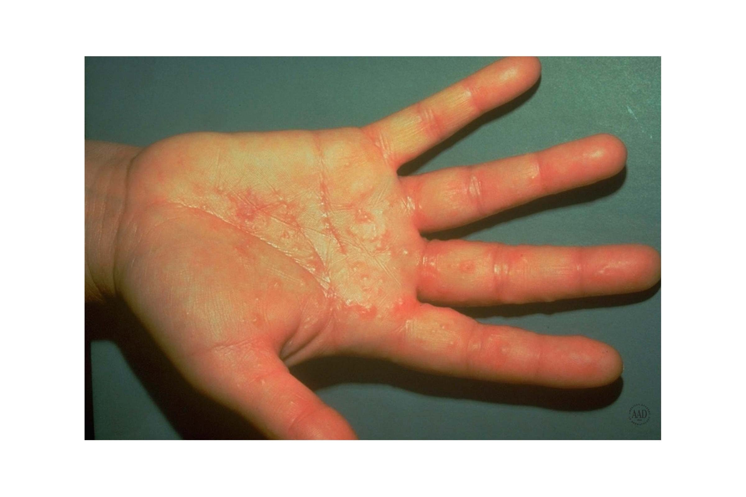 contact dermatitis on the palm of the hand