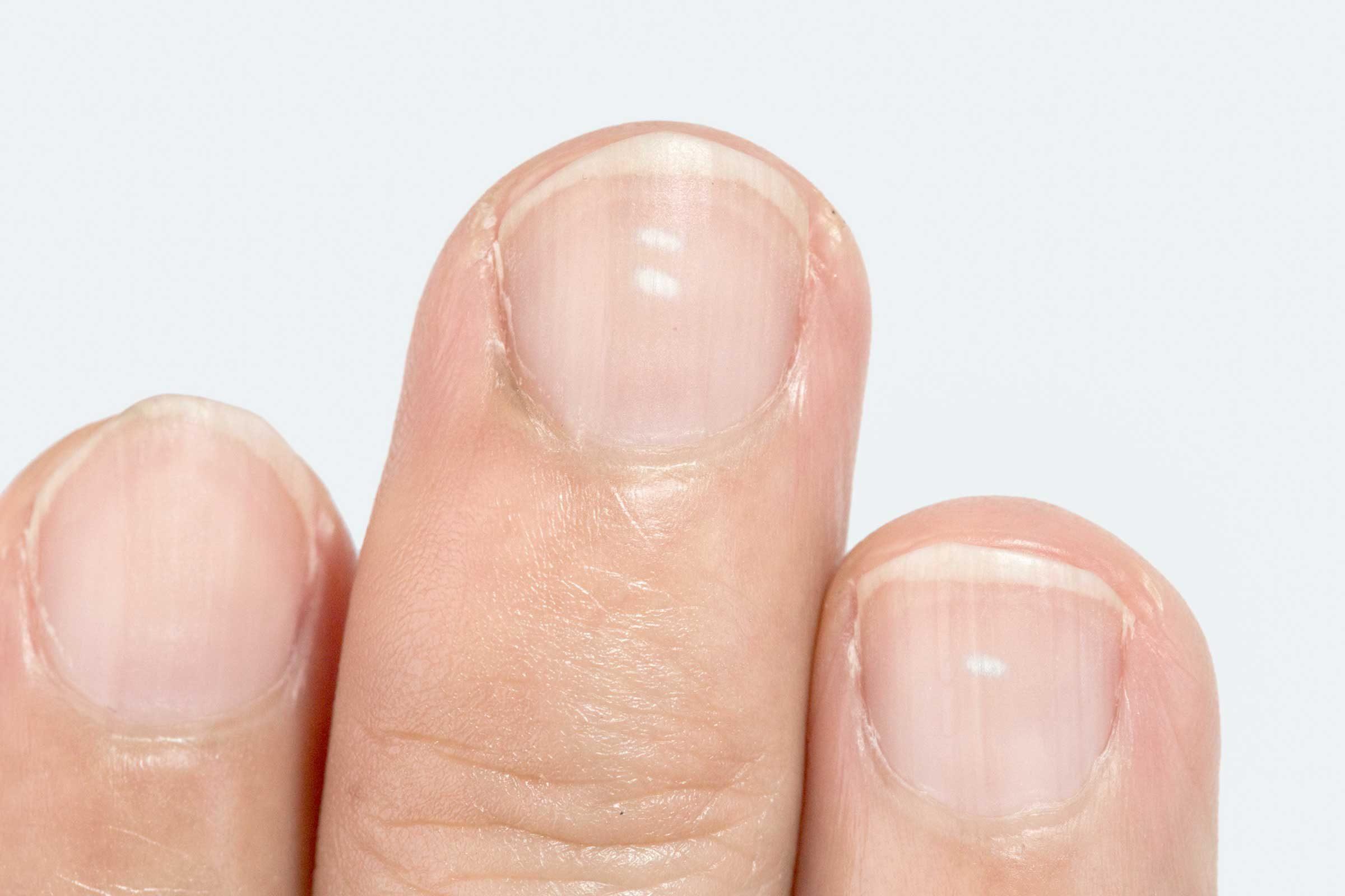 Почему точки на ногтях
