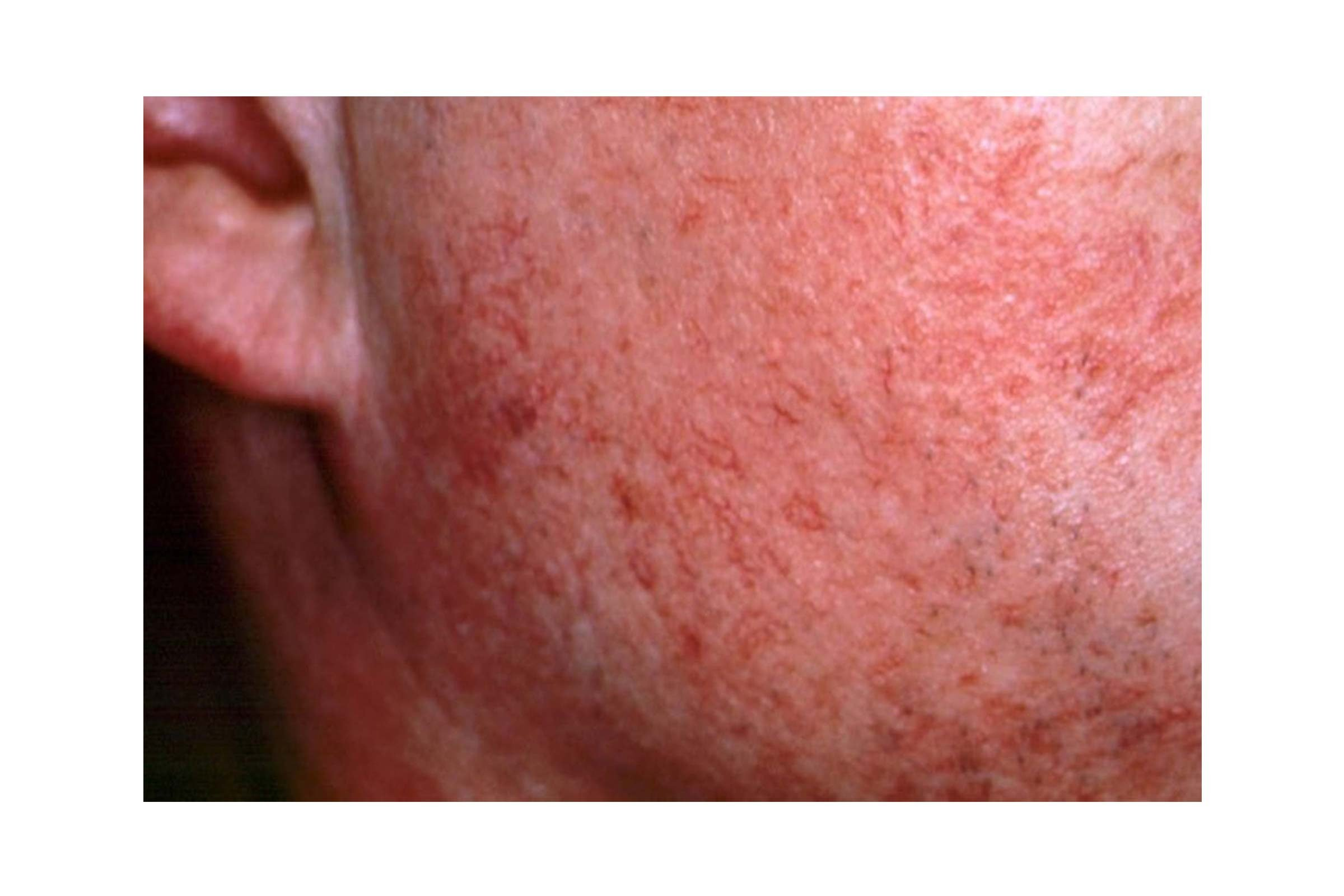 close up of rosacea on the cheek