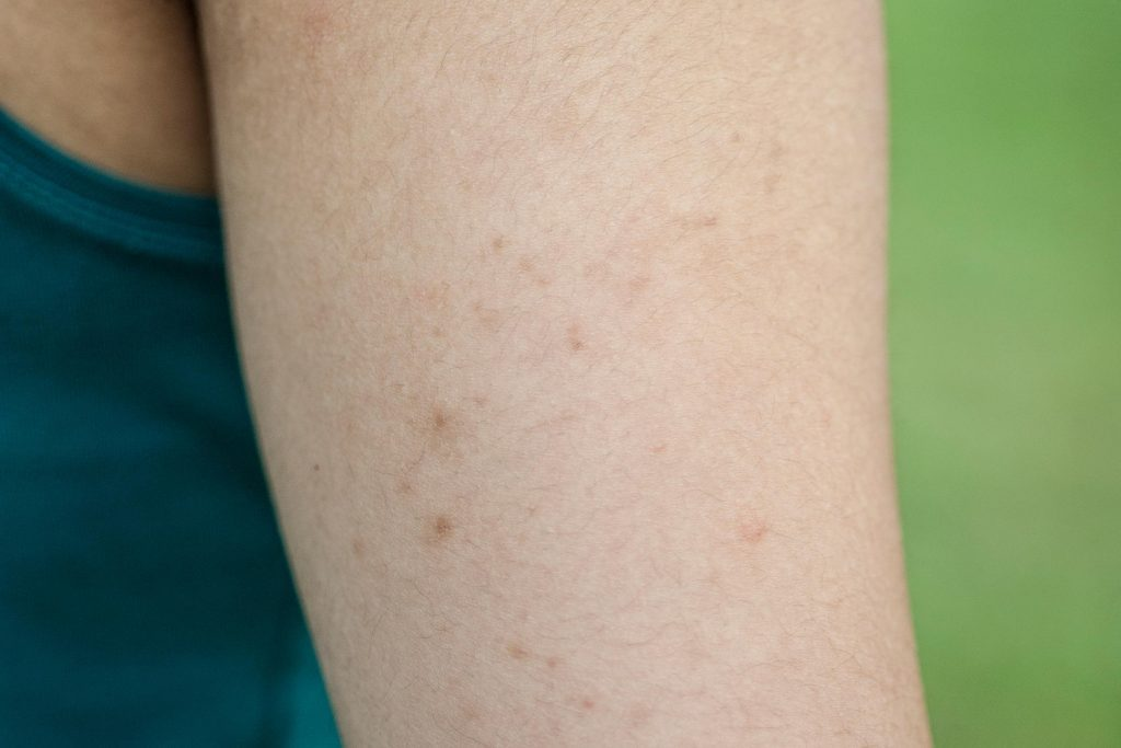 Keratosis Pilaris How To Get Rid Of Chicken Skin Readers Digest