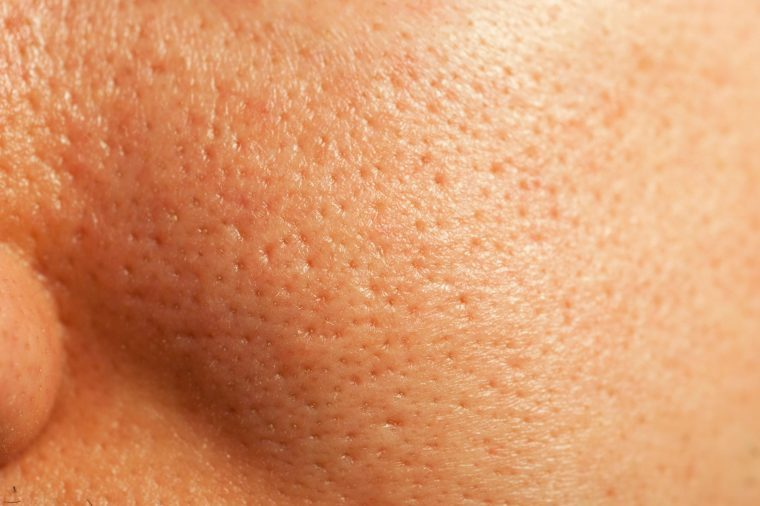 Myths And Truths About Large Pores | Reader's Digest