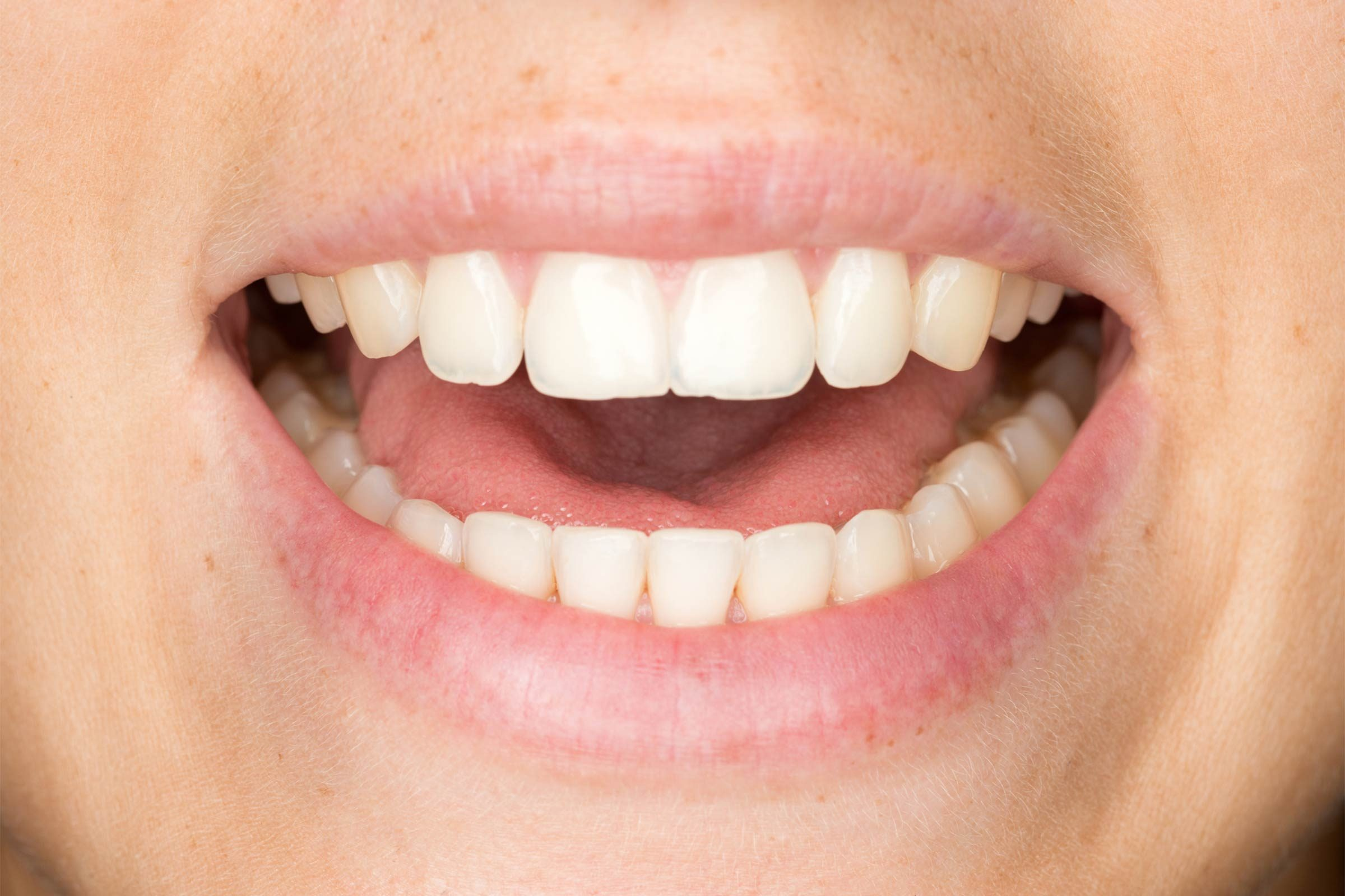 What is laryngitis