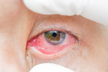 07_Infections_Reasons_You_have_bloodshot_eyes