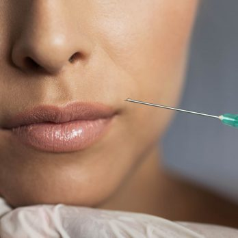 Curious About Botox? 11 Things You Need to Know First
