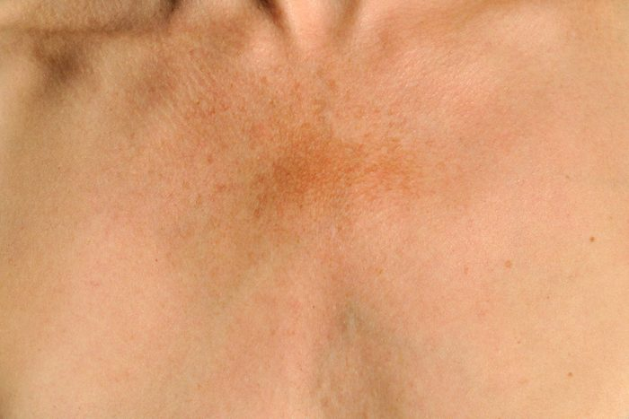 09-got-age-spots-heres-what-a-dermatologist-would-do-611070986-vidka