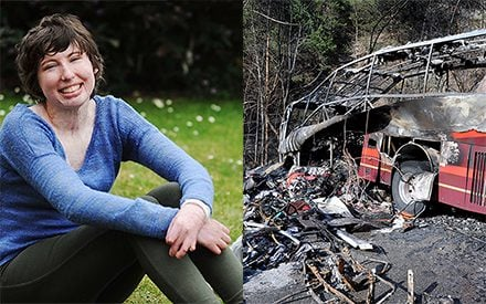 A Fiery Bus Crash Left This 19-Year-Old Close to Death. How She Survived Is Nothing Short of a Miracle.