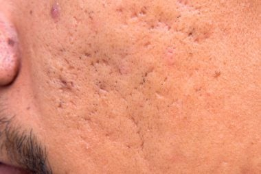 How To Get Rid Of Red Acne Scars Naturally