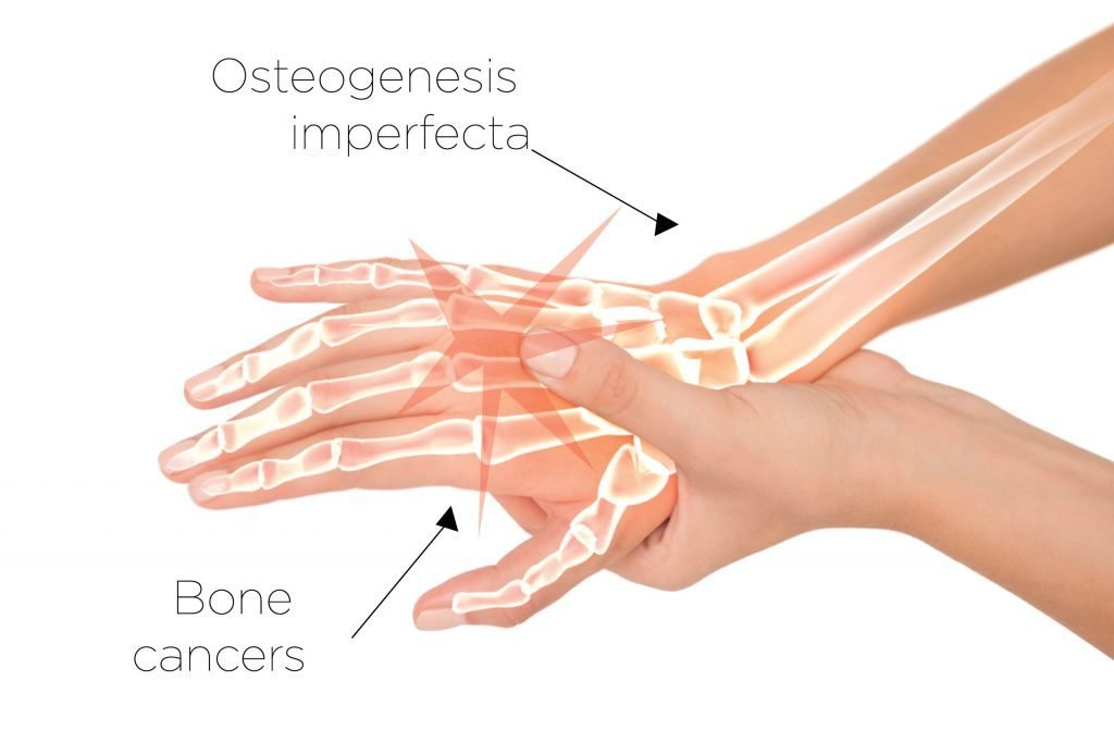 Bone-Health-Issues-You-Should-Know-(Besides-Osteoporosis)
