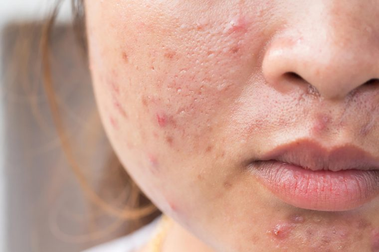 Signs Your Skin Products Are Bad for Your Skin| The Healthy