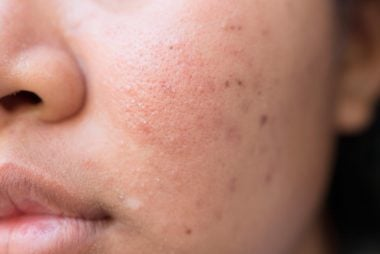 how to get rid of 5 common types of acne scars readers