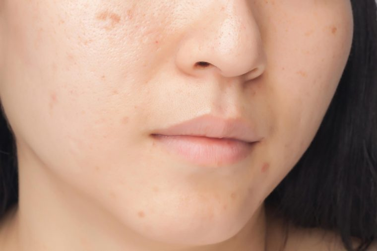 Signs Your Skin Products Are Bad for Your Skin| Reader's Digest